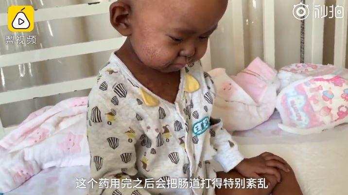 ▲▼女童骨髓移植手术后皮肤发黑。(图/翻摄自梨视频)